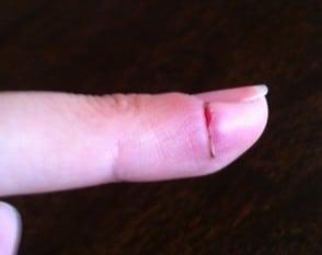 finger med djupt skärsår. Trasigt finger.