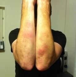 Blåmärken på underarmarna efter krav maga-träning. Blåslagen!