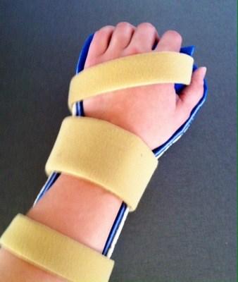 Handstödet färdigt! Ett handstöd av plast med mjuka remmar, tillverkat hos en handspecialist. Handspecialisten på Dalens sjukhus.
