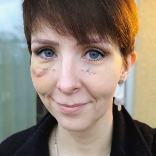 Klara Schmidtz en vecka efter ögonlocksoperation