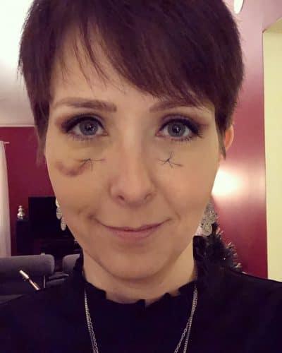 Klara Schmidtz med stygn i ansiktet och blåtira